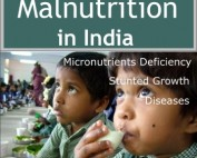 Malnutrition in India - government interventions- UPSC Mains GS paper 2 revision notes